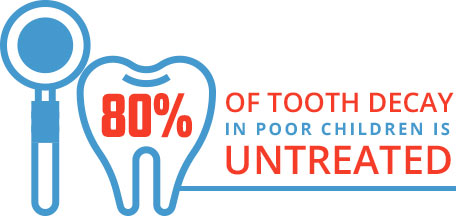 80% of tooth decay in poor children is untreated