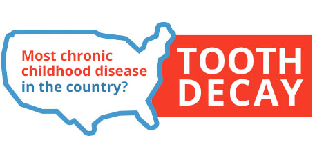 Most chronic childhood disease in the country is Tooth Decay